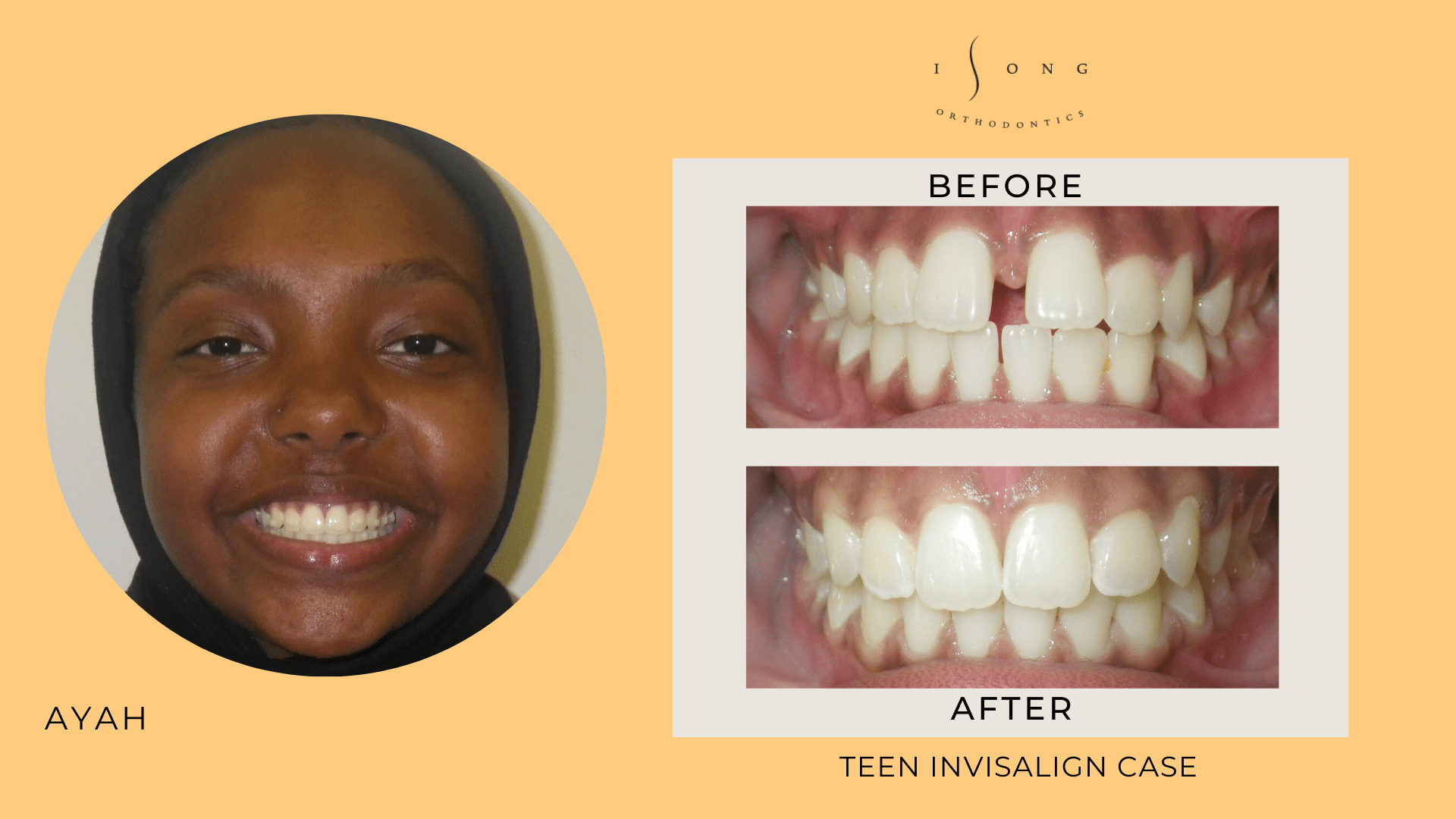 Ayah Teen Invisalign Before and After