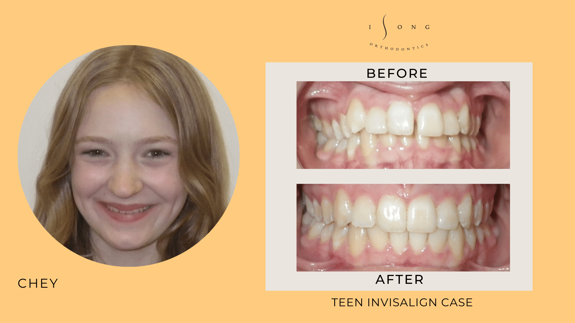 Chey Teen Invisalign Before and After
