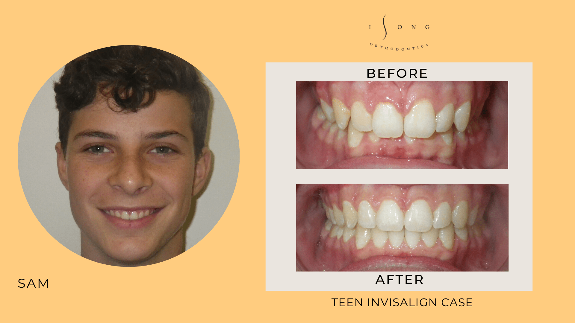 Sam Teen Invisalign Before and After