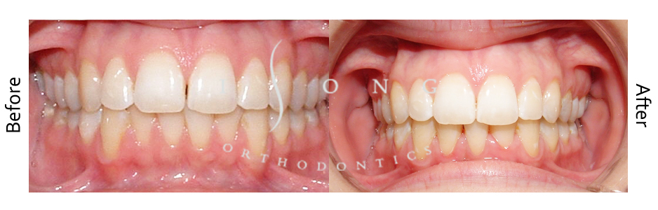 Incisor Extraction Invisalign