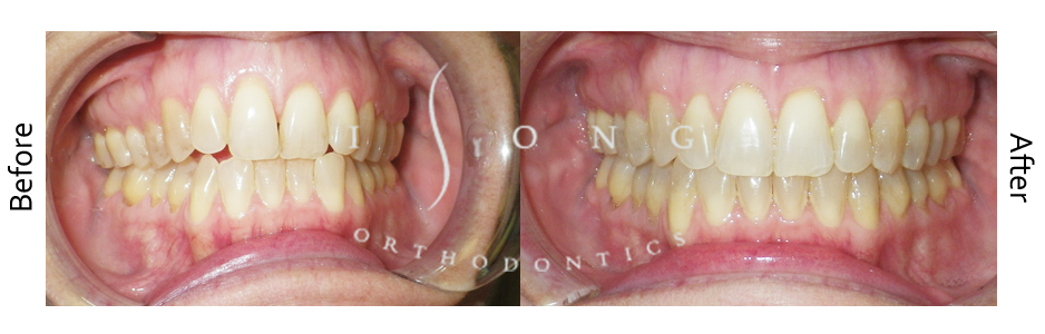 Non Extraction Invisalign