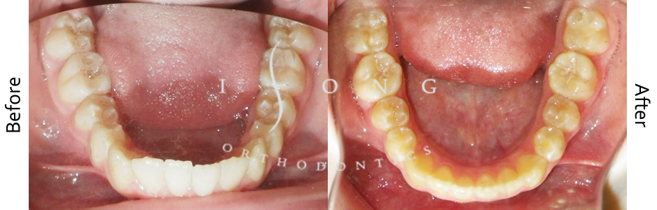 Non Extraction TEEN Invisalign