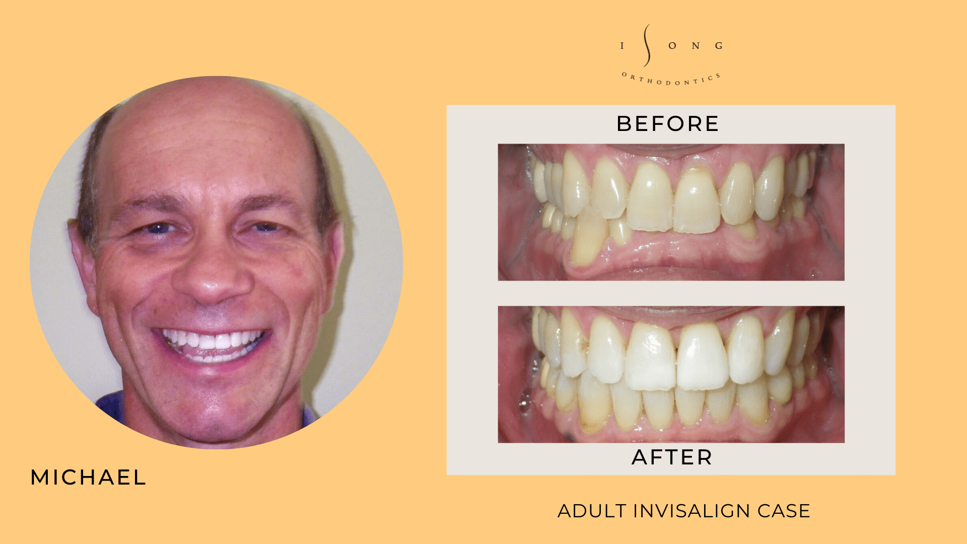 Michael Adult Invisalign Before and After