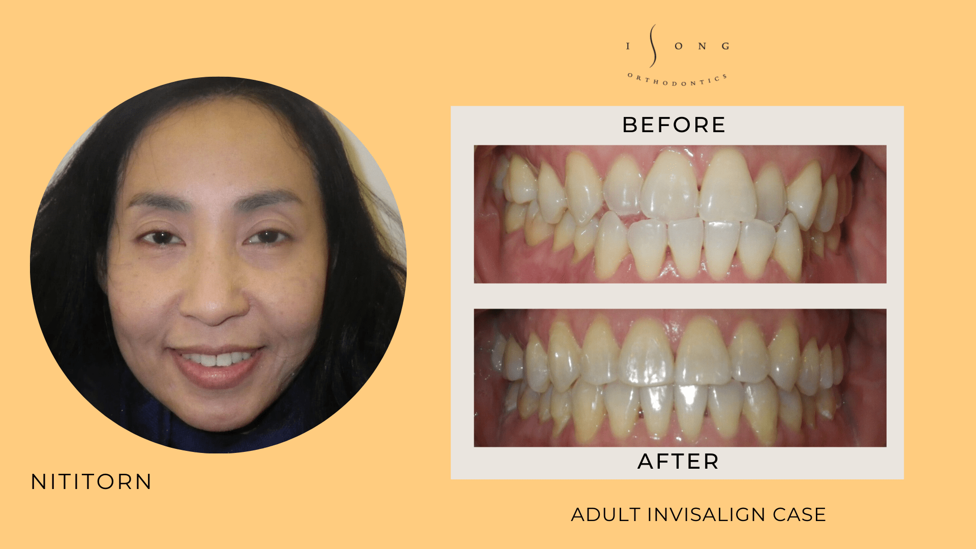 Nititorn Adult Invisalign Before and After