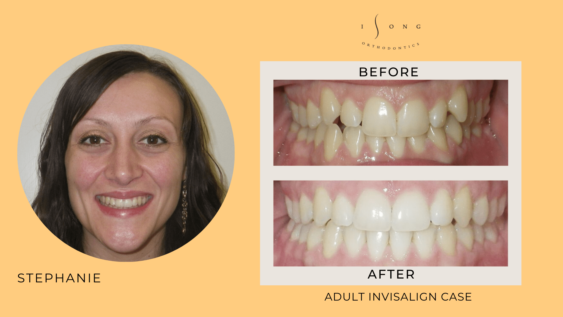 Stephanie Adult Invisalign Before and After