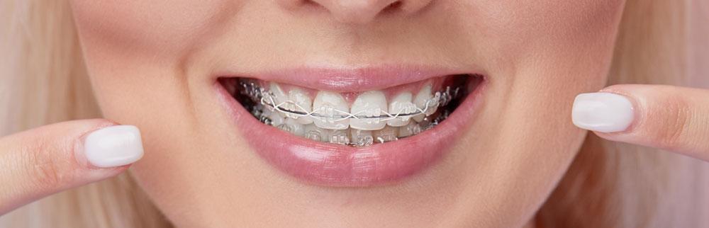 orthodontics-adulthood