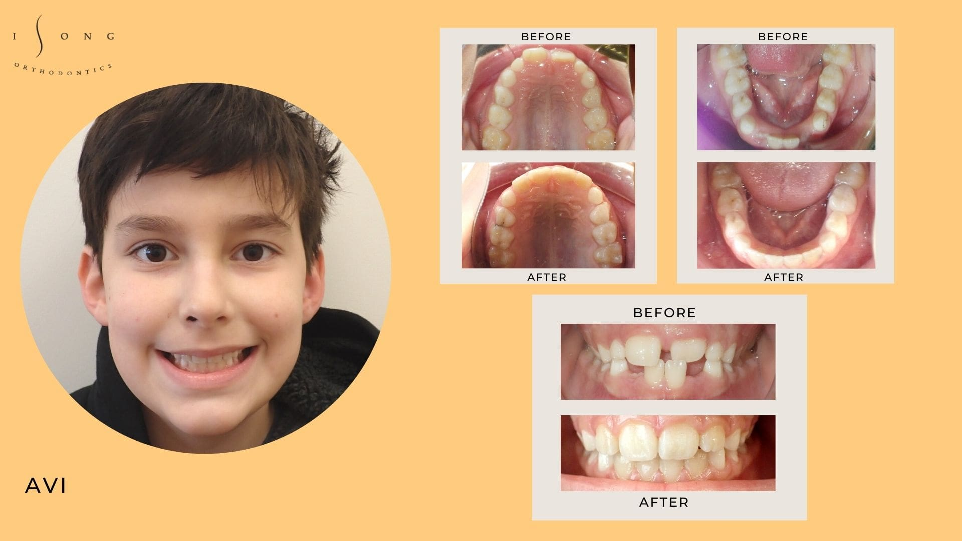 Avi Before and After Invisalign Phase 1