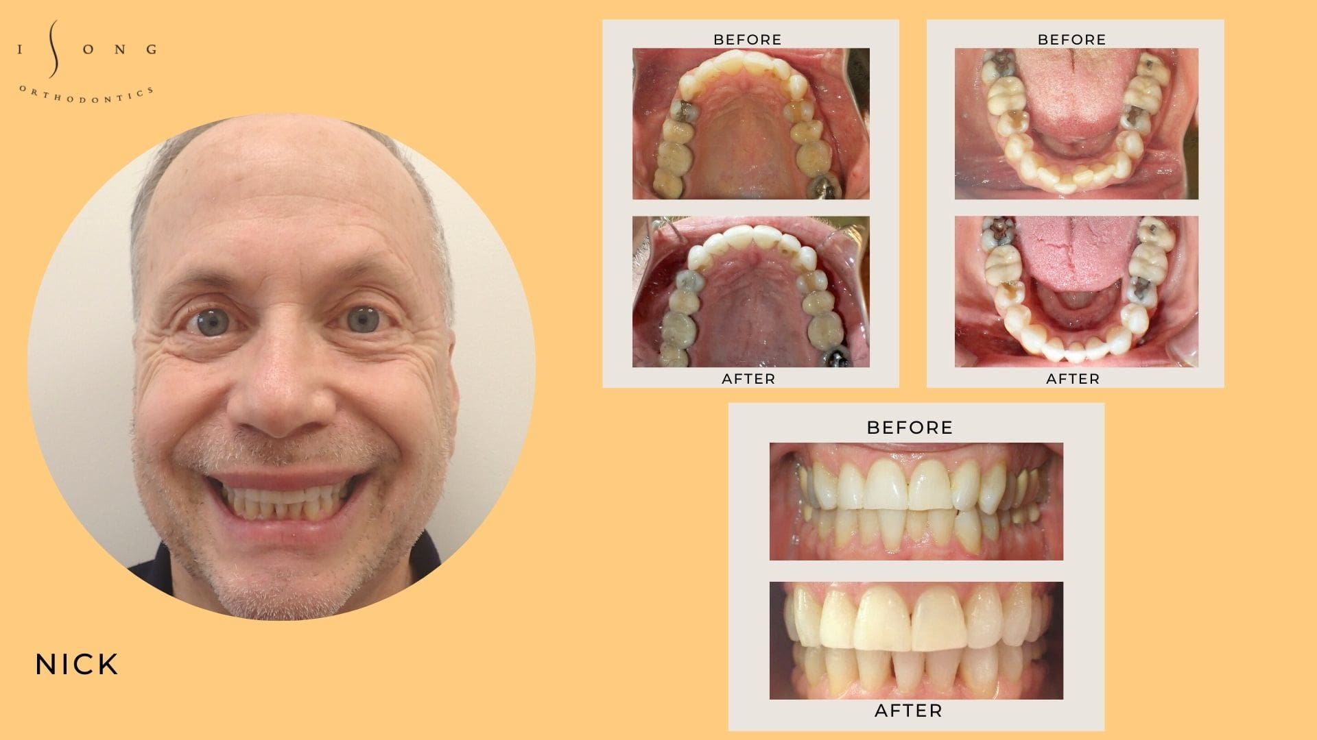 Nick Adult Invisalign Before and After