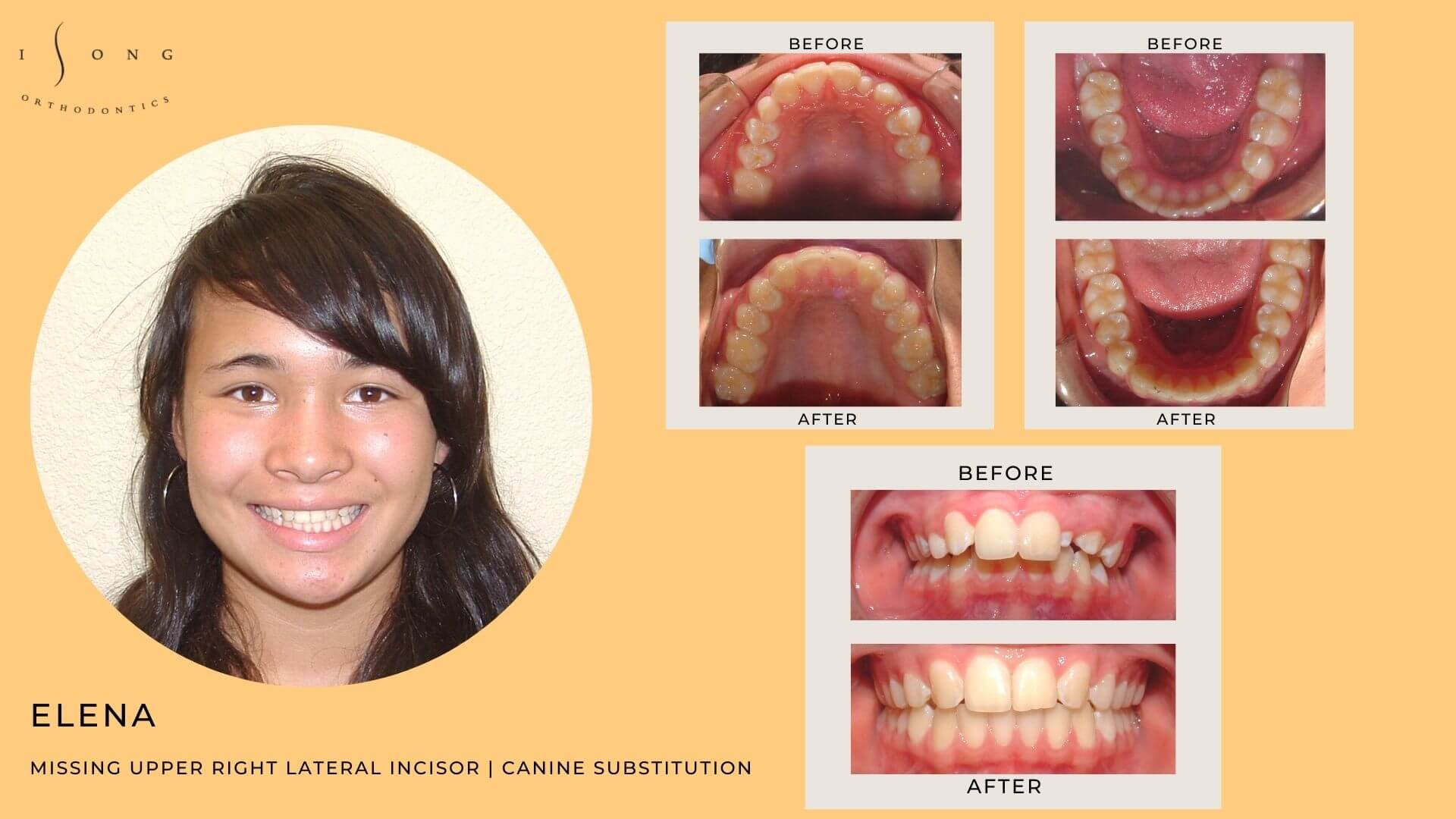 Elena Braces Before and After