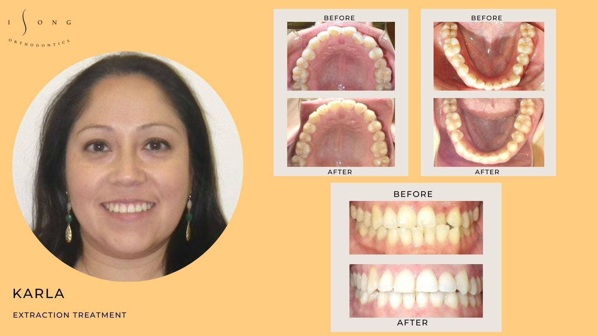 Karla - Before and After Braces