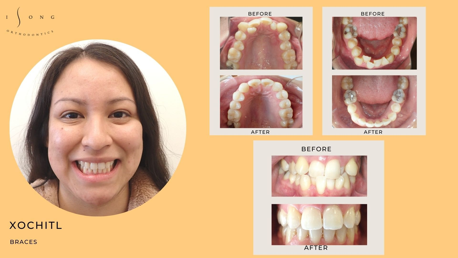 Xochitl Braces Before and After
